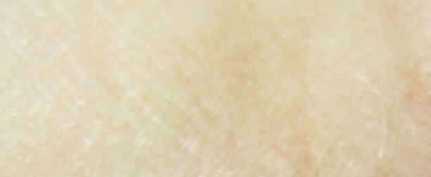 Atopowe zapalenie skóry – najczęstsze problemy
