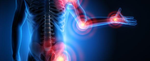 Naturalne leczenie reumatyzmu-domowe sposoby